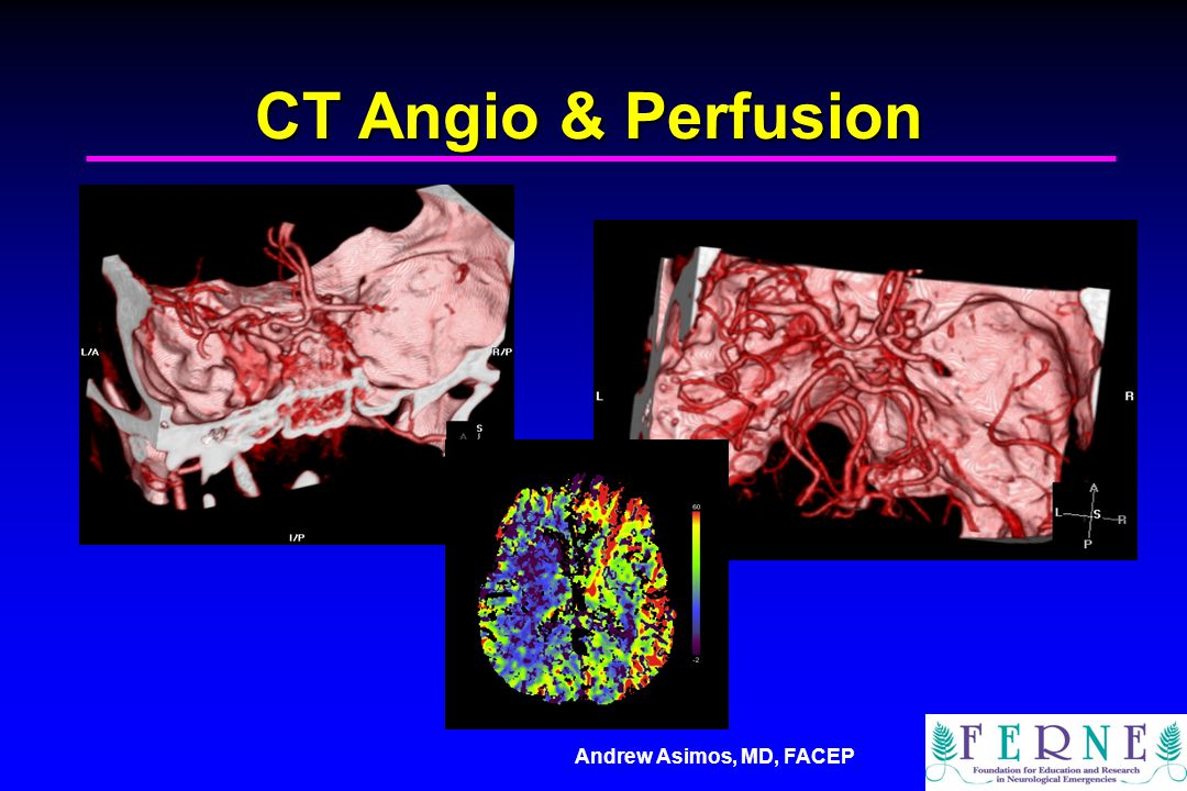 CT Angio & Perfusion