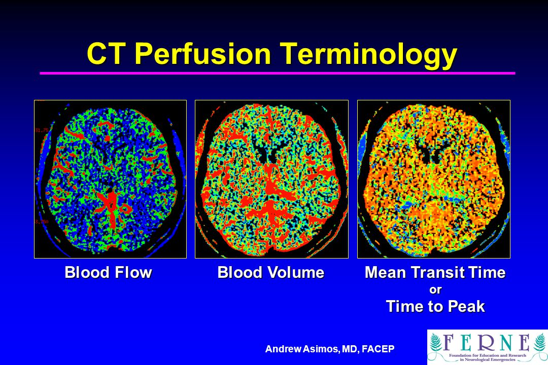 CT Perfusion Terminology