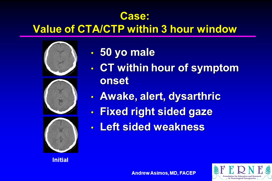 Case: Value of CTA/CTP within 3 hour window