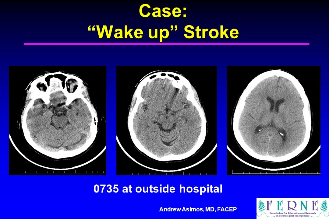 Case: Wake up Stroke 0735 at outside hospital