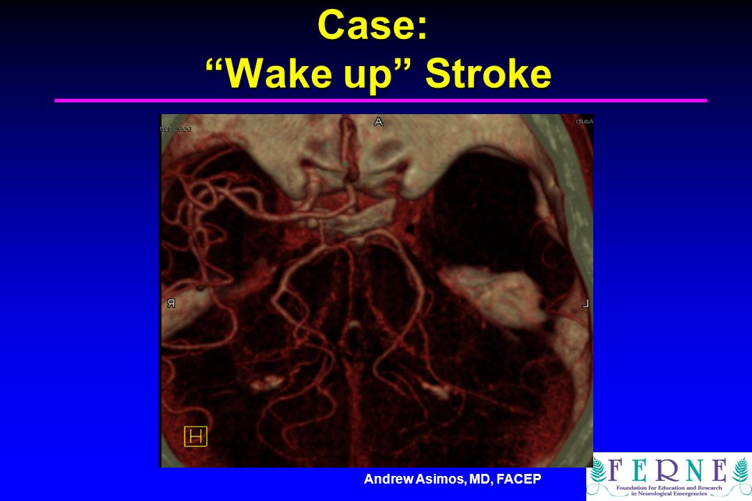 Case: Wake up Stroke