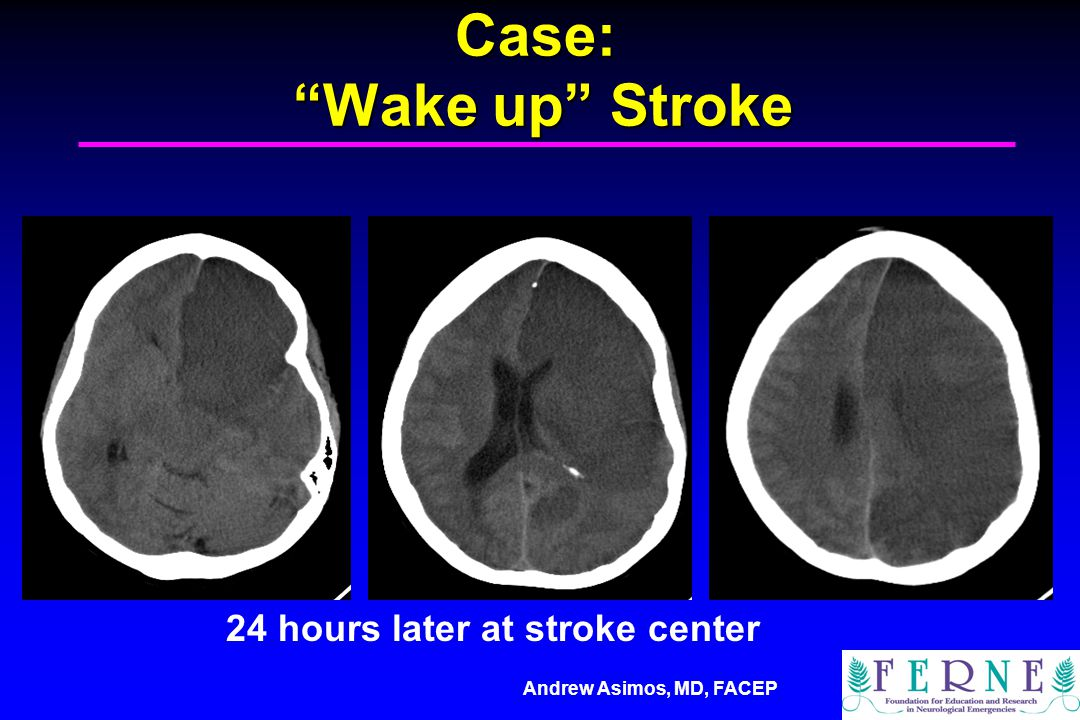 Case: Wake up Stroke 24 hours later at stroke center