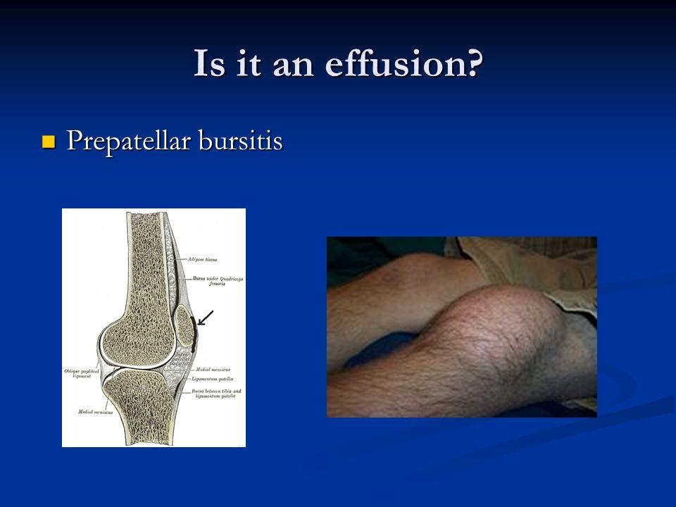 Is it an effusion Prepatellar bursitis