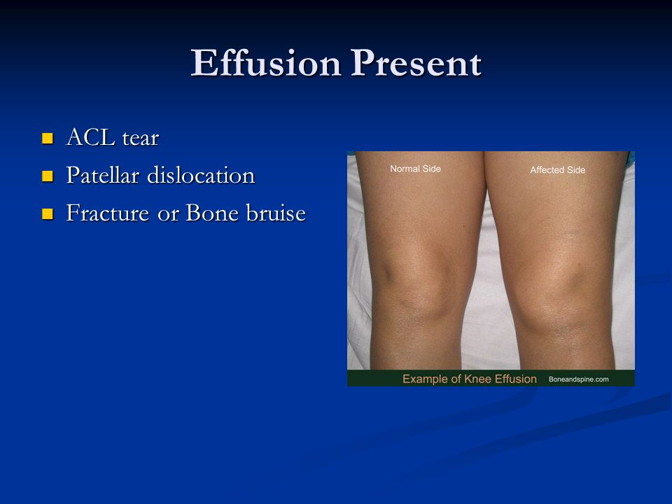 knee injury essay Knee anatomy «» start the knee joint is the largest joint in the body, consisting of 4 bones and an extensive network of ligaments and muscles  injuries to the knee joint are amongst the most common in sporting activities and understanding the anatomy of the joint is fundamental in understanding any subsequent pathol.