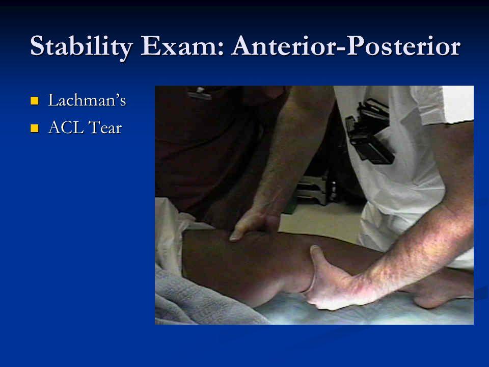 Stability Exam: Anterior-Posterior