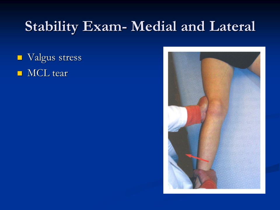 Stability Exam- Medial and Lateral