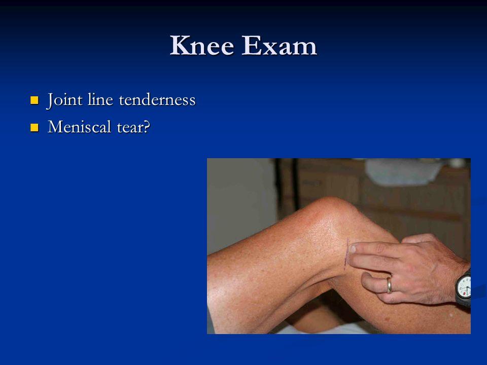 Knee Exam Joint line tenderness Meniscal tear