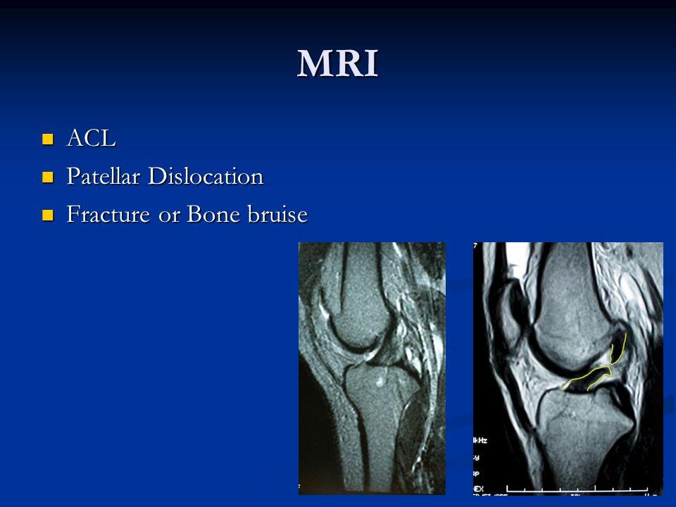 MRI ACL Patellar Dislocation Fracture or Bone bruise