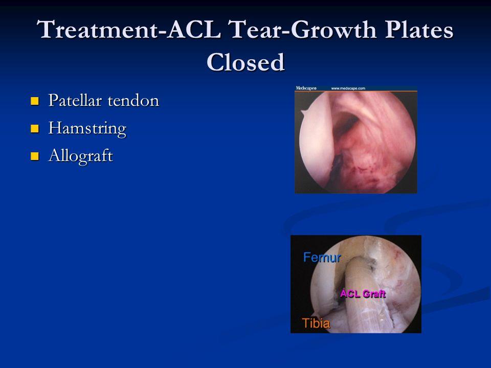 Treatment-ACL Tear-Growth Plates Closed