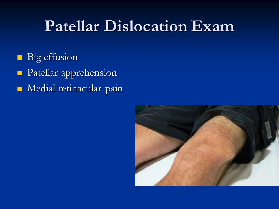Patellar Dislocation Exam