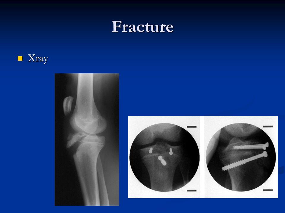 Fracture Xray
