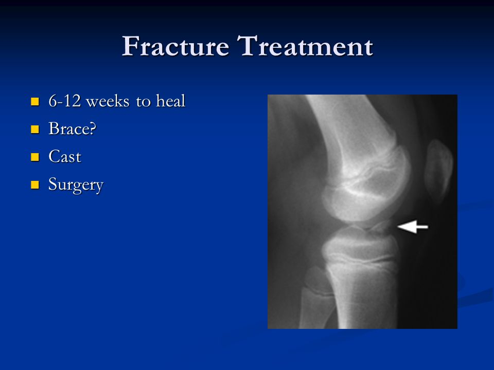 Fracture Treatment 6-12 weeks to heal Brace Cast Surgery