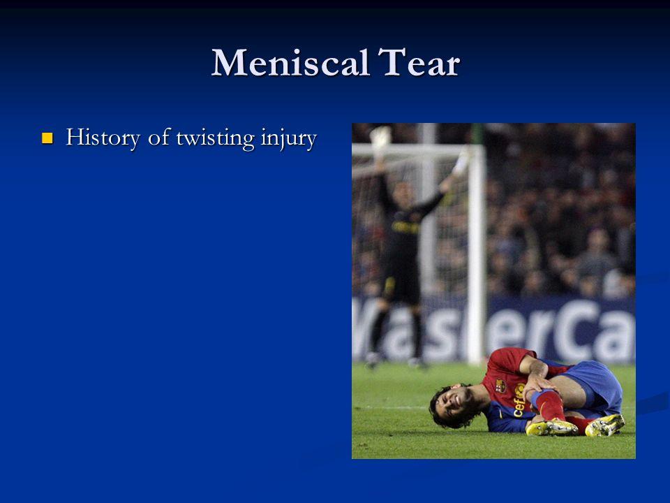 Meniscal Tear History of twisting injury