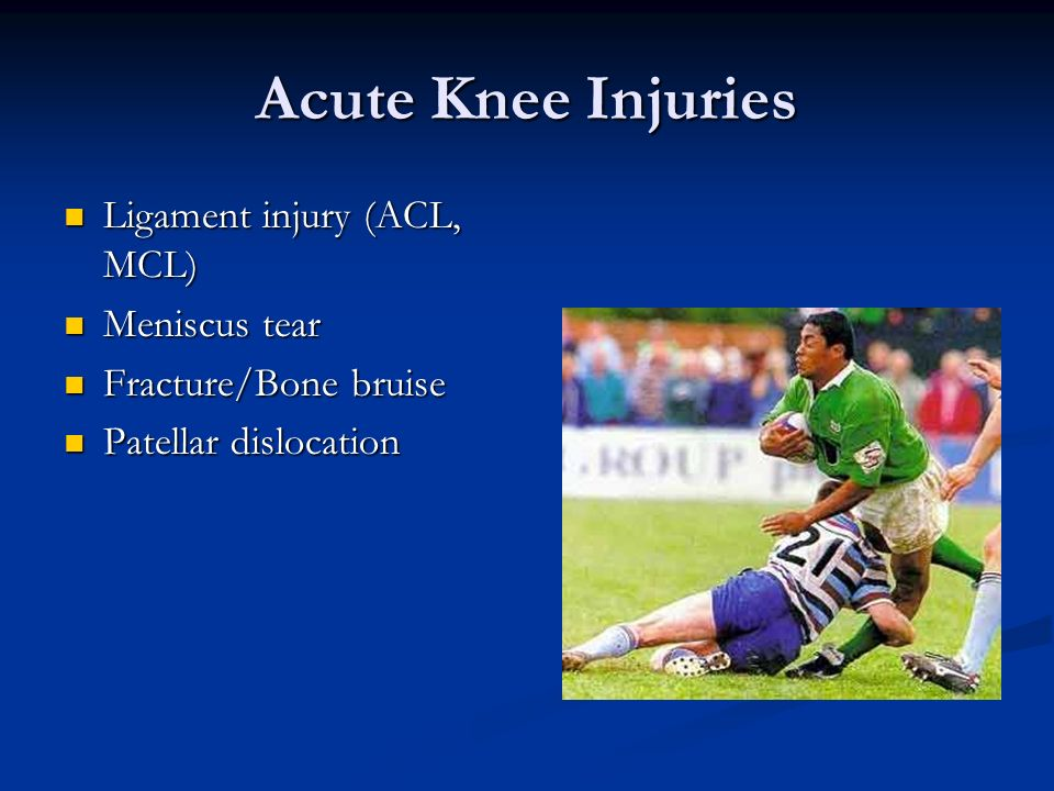 Acute Knee Injuries Ligament injury (ACL, MCL) Meniscus tear
