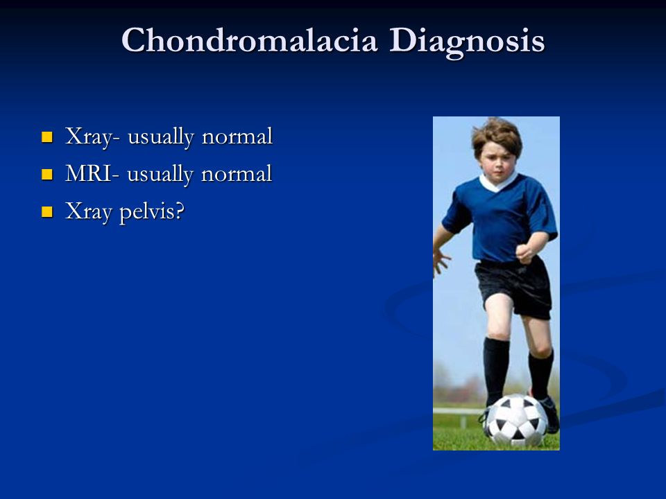 Chondromalacia Diagnosis