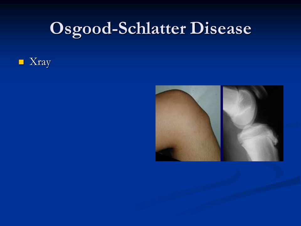 how to fix osgood schlatter
