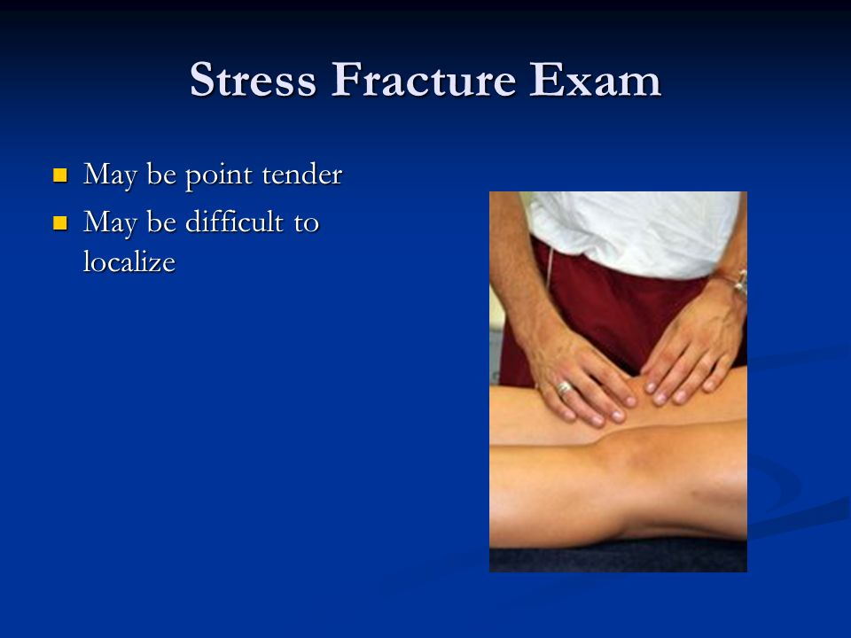 Stress Fracture Exam May be point tender May be difficult to localize