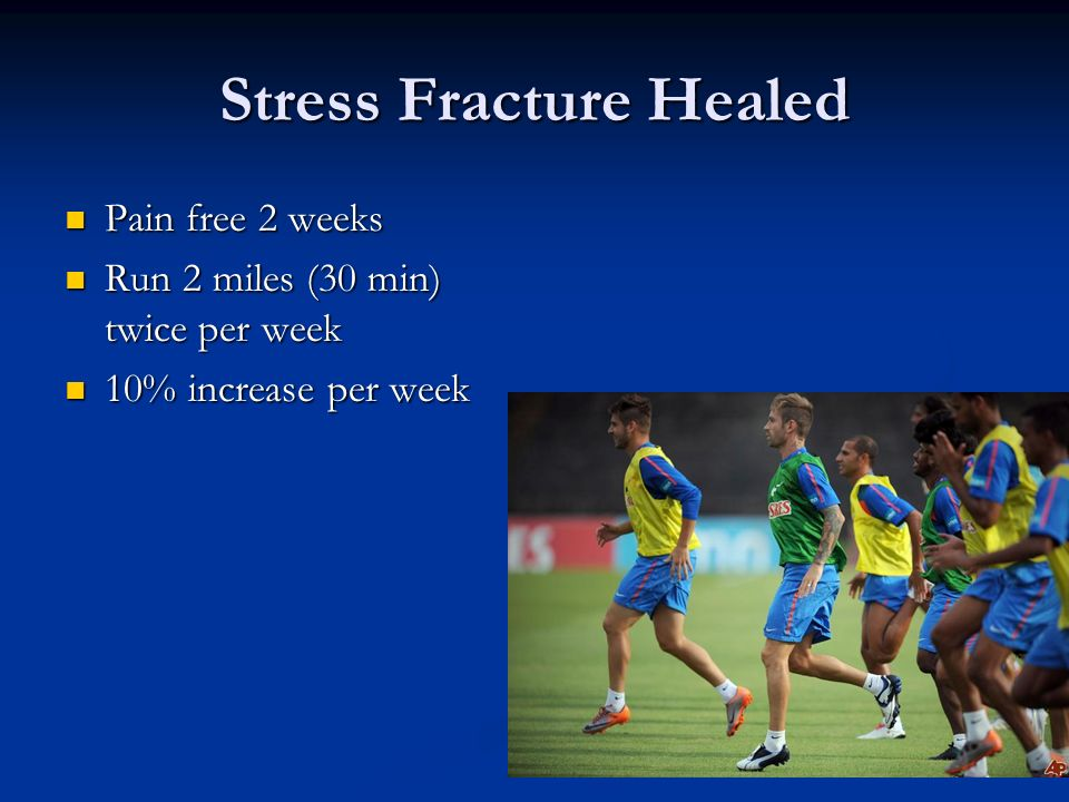 Stress Fracture Healed
