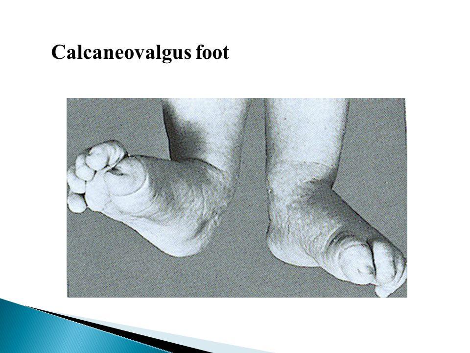 Calcaneovalgus foot