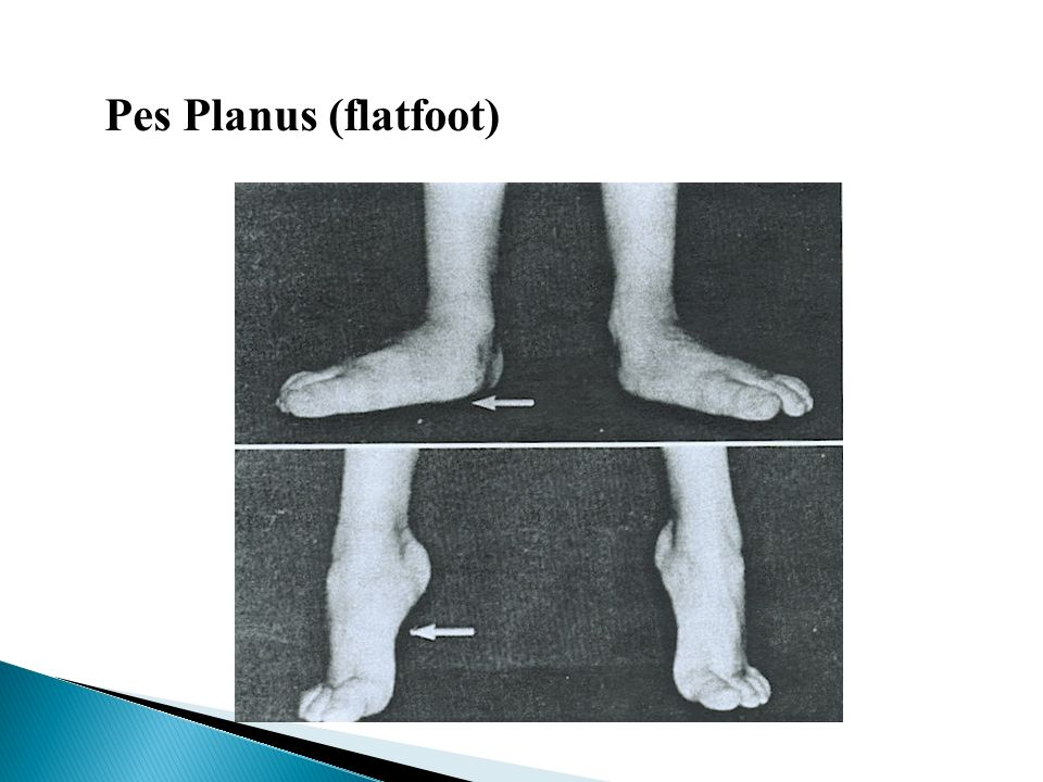 Pes Planus (flatfoot)