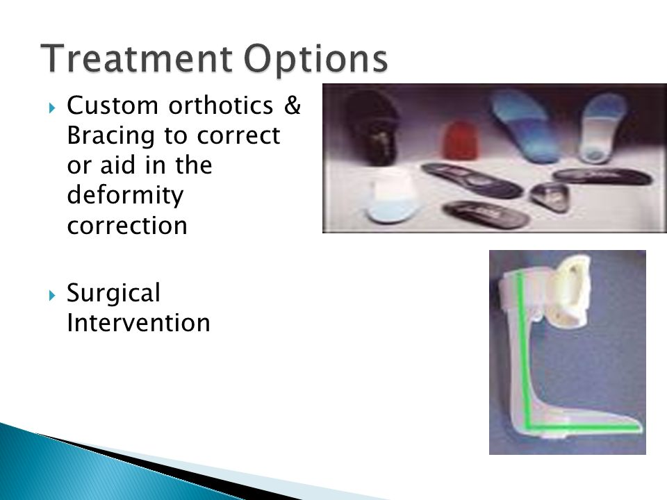 Treatment Options Custom orthotics & Bracing to correct or aid in the deformity correction.