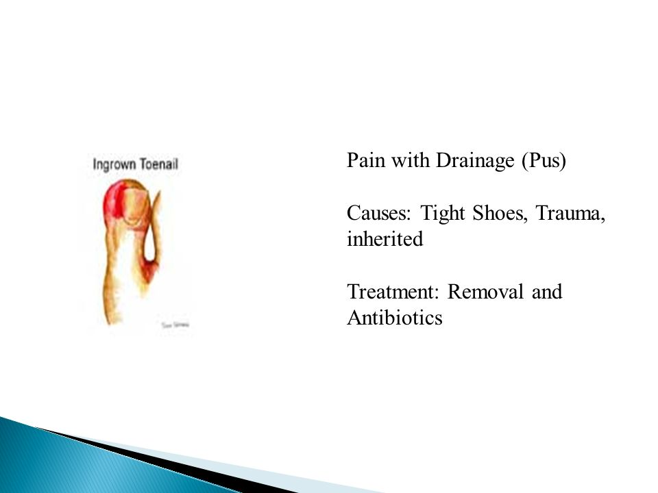 Pain with Drainage (Pus)