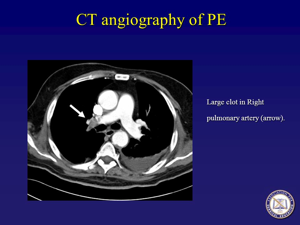 CT angiography of PE Large clot in Right pulmonary artery (arrow).