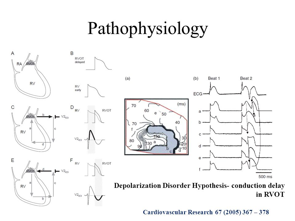 Pathophysiology Depolarization Disorder Hypothesis- conduction delay in RVOT.