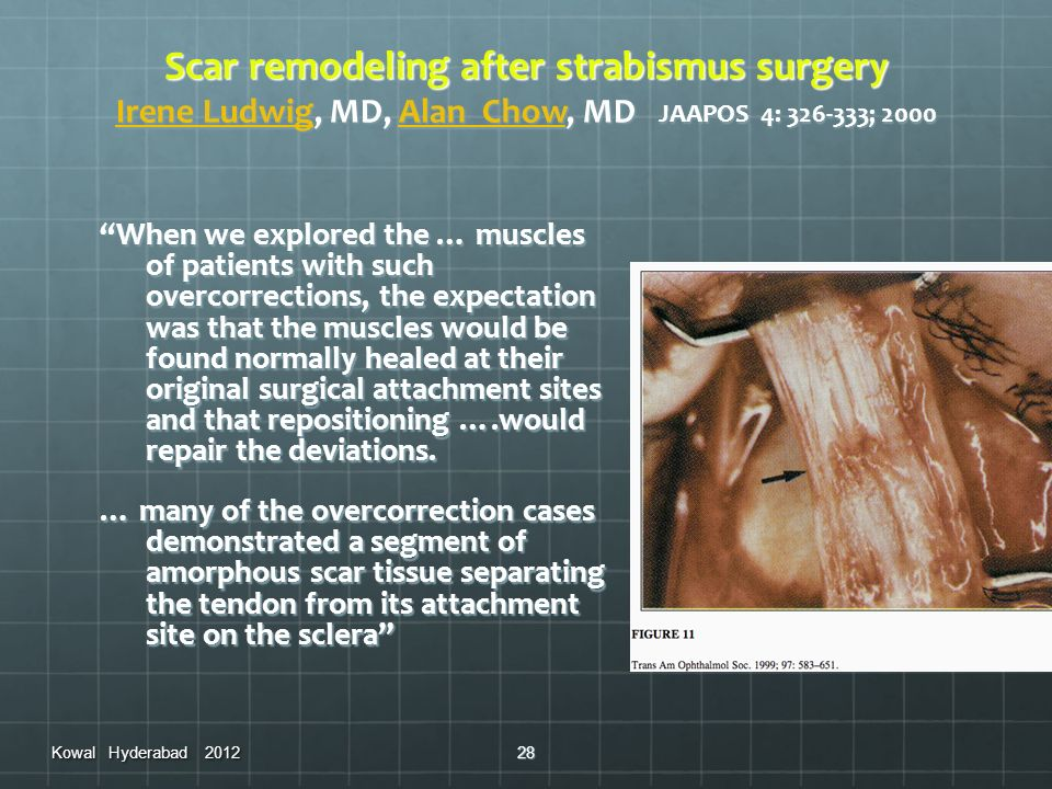 Scar remodeling after strabismus surgery Irene Ludwig, MD, Alan Chow, MD JAAPOS 4: 326-333; 2000