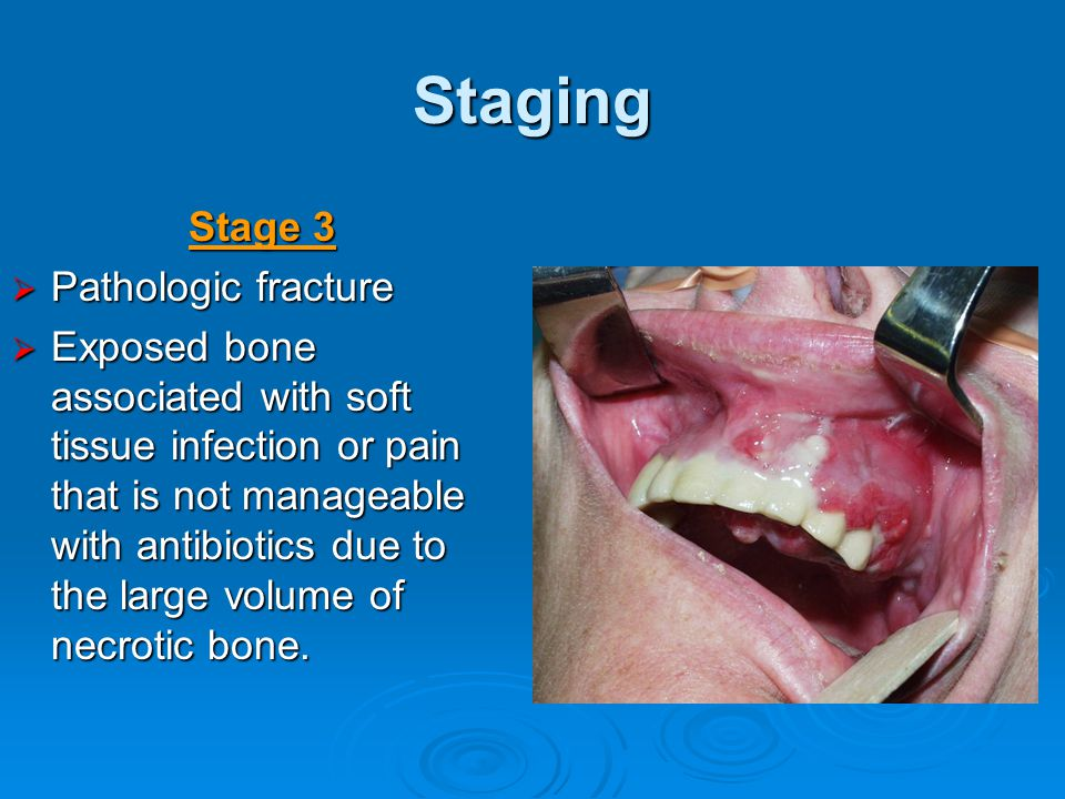 Staging Stage 3 Pathologic fracture