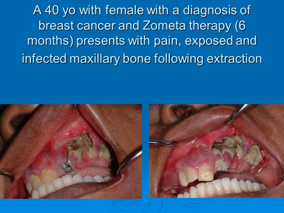 A 40 yo with female with a diagnosis of breast cancer and Zometa therapy (6 months) presents with pain, exposed and infected maxillary bone following extraction