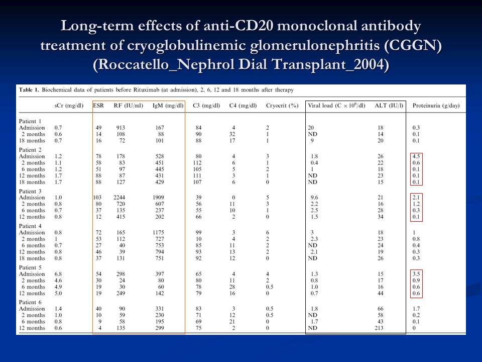 Long-term effects of anti-CD20 monoclonal antibody treatment of cryoglobulinemic glomerulonephritis (CGGN) (Roccatello_Nephrol Dial Transplant_2004)