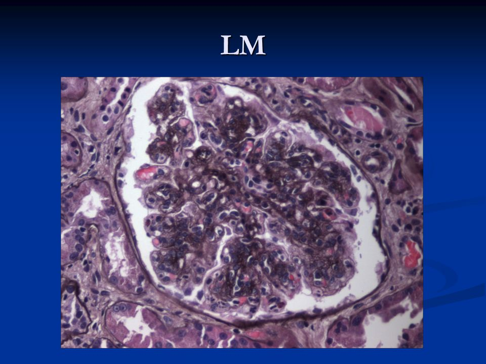 LM MICRO -13 glomeruli, one globally sclerotic