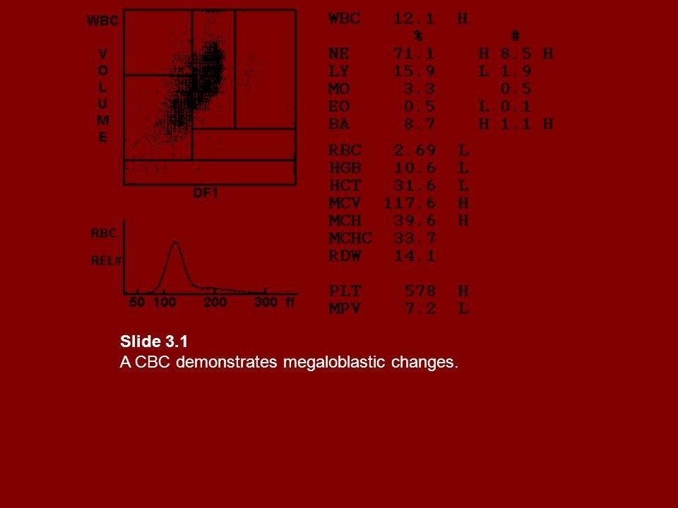 Slide 3.1 A CBC demonstrates megaloblastic changes.
