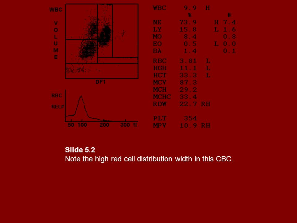 Slide 5.2 Note the high red cell distribution width in this CBC.
