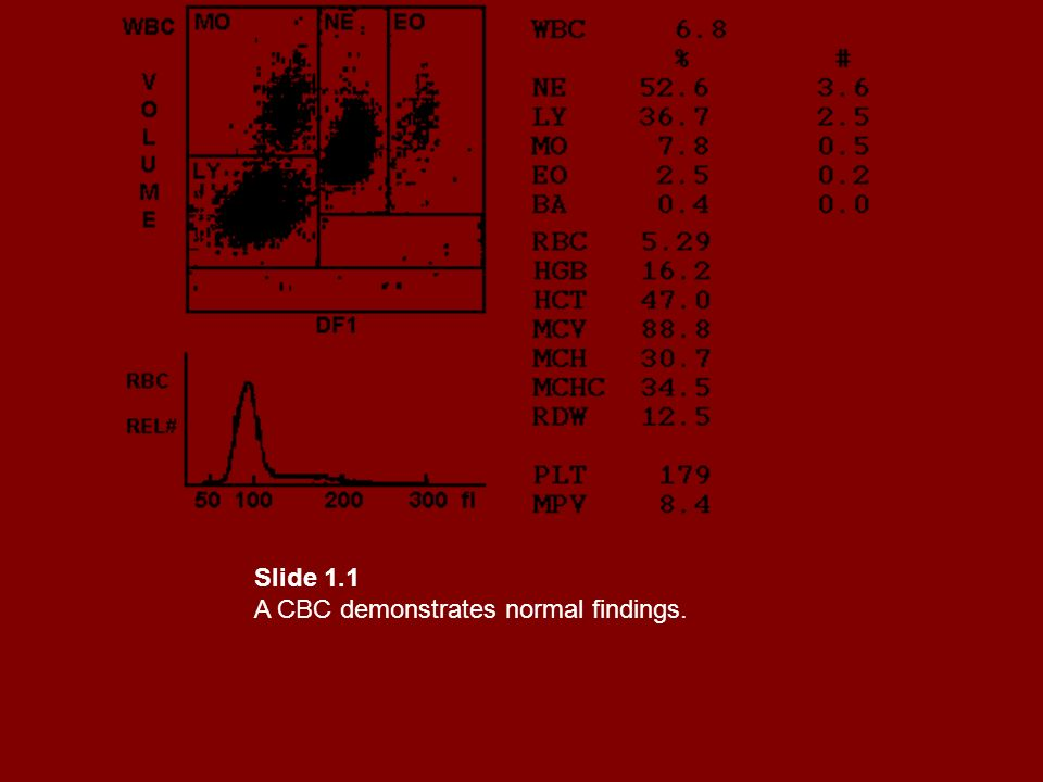 Slide 1.1 A CBC demonstrates normal findings.