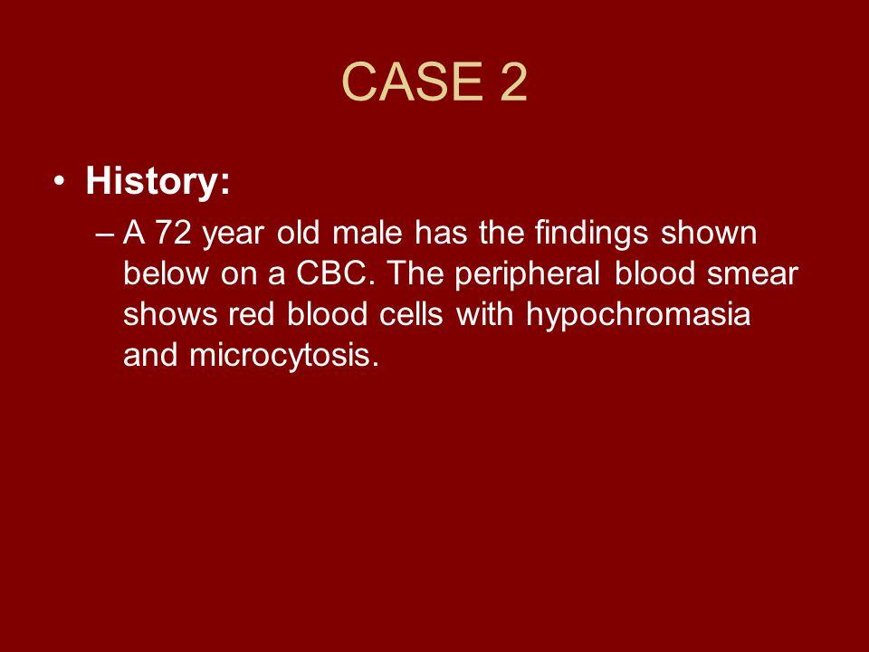 CASE 2History: