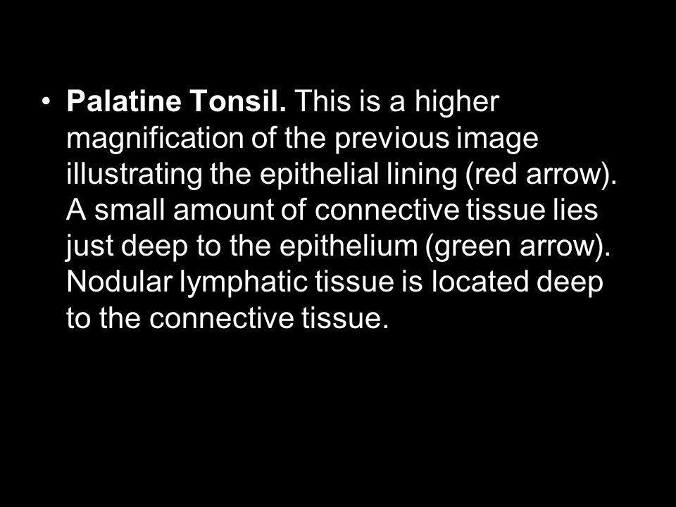 Palatine Tonsil.