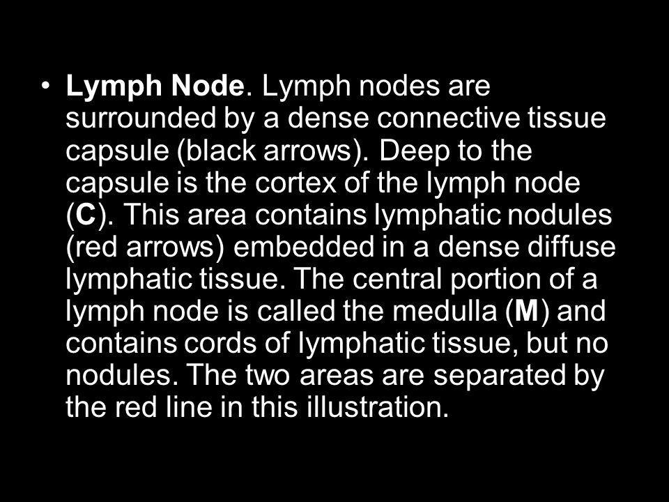 Lymph Node. Lymph nodes are surrounded by a dense connective tissue capsule (black arrows).