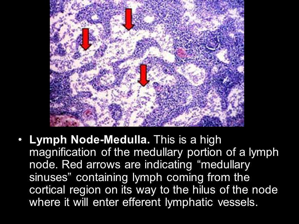 Lymph Node-Medulla. This is a high magnification of the medullary portion of a lymph node.