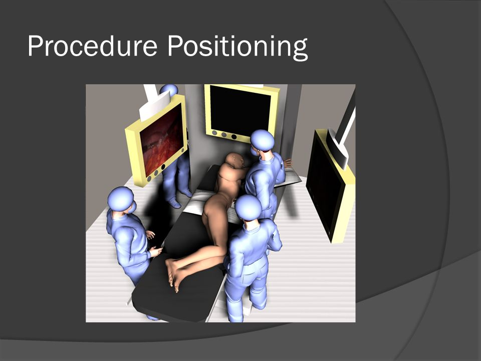 Procedure Positioning
