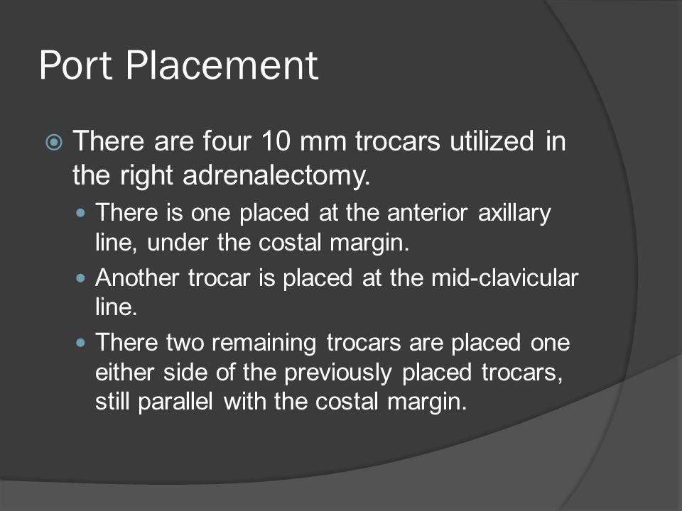 Port Placement There are four 10 mm trocars utilized in the right adrenalectomy.