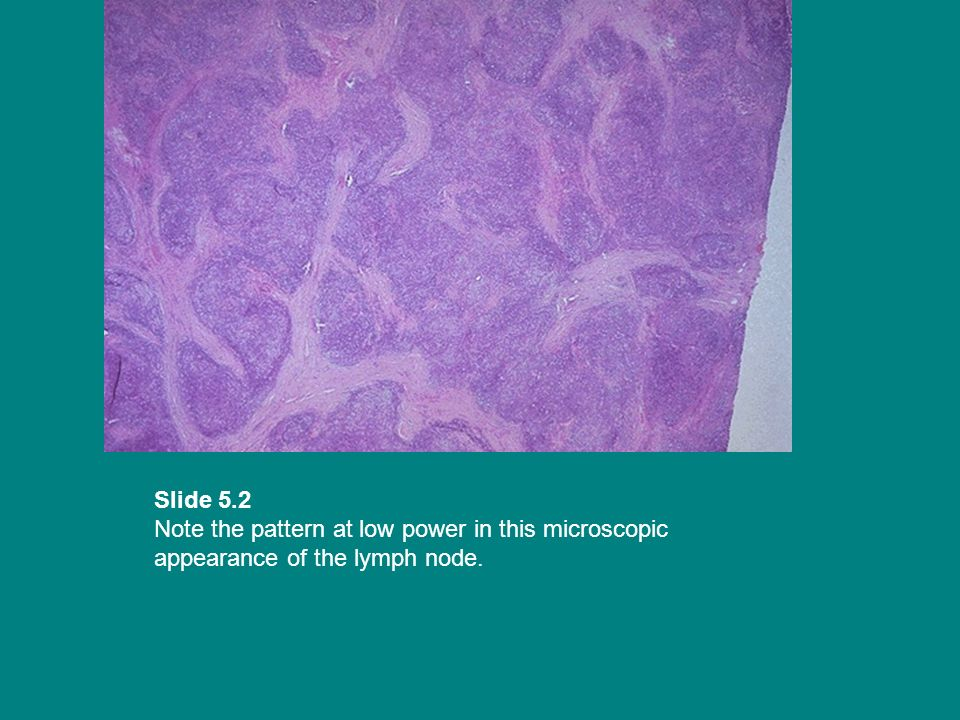 Slide 5.2 Note the pattern at low power in this microscopic appearance of the lymph node.