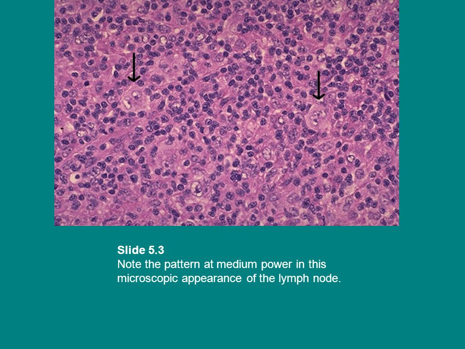 Slide 5.3 Note the pattern at medium power in this microscopic appearance of the lymph node.