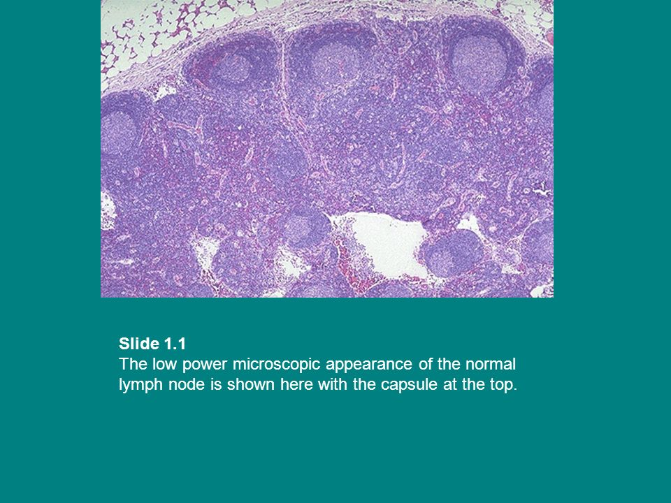 Slide 1.1 The low power microscopic appearance of the normal lymph node is shown here with the capsule at the top.