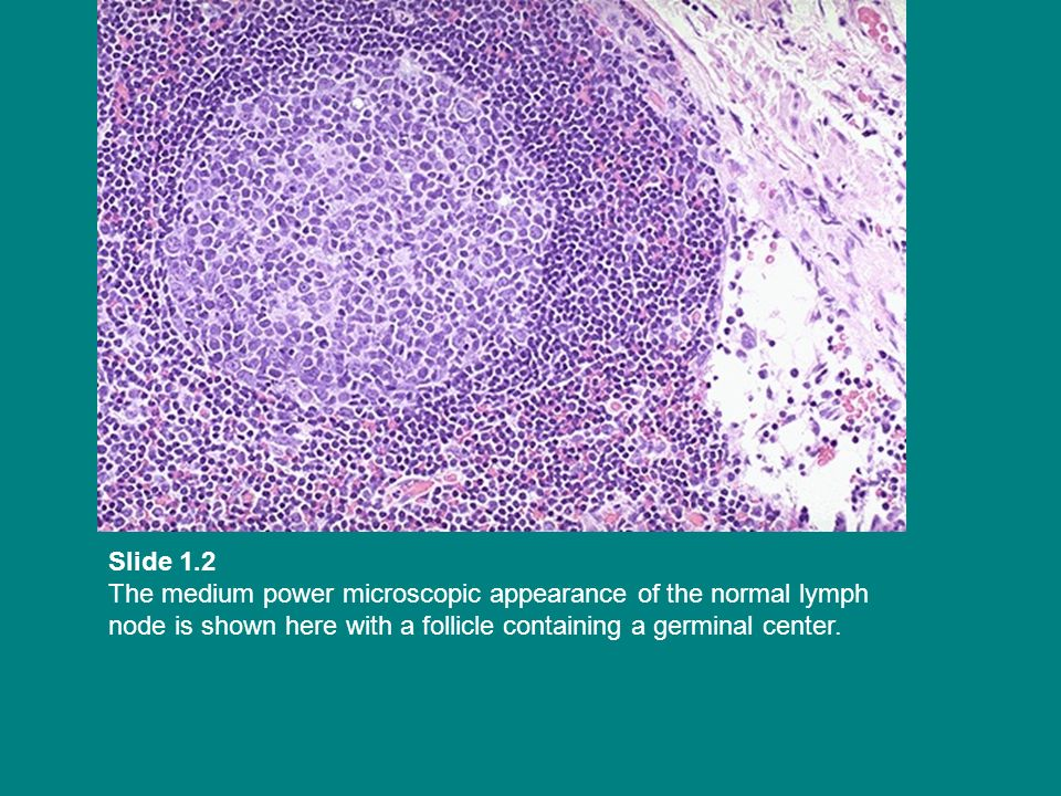 Slide 1.2 The medium power microscopic appearance of the normal lymph node is shown here with a follicle containing a germinal center.