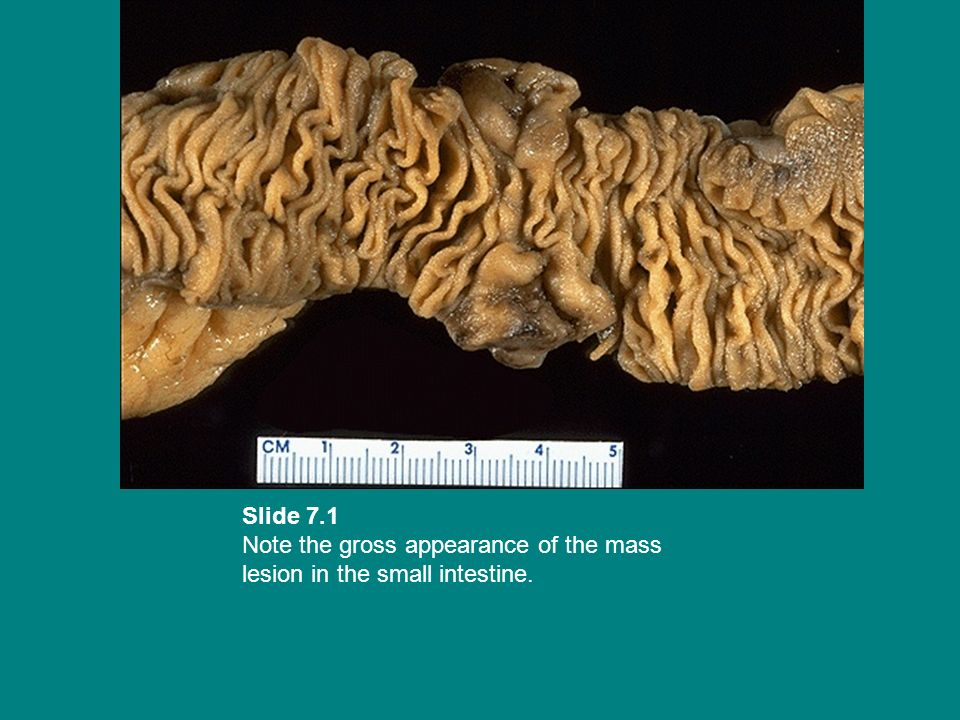 Slide 7.1 Note the gross appearance of the mass lesion in the small intestine.