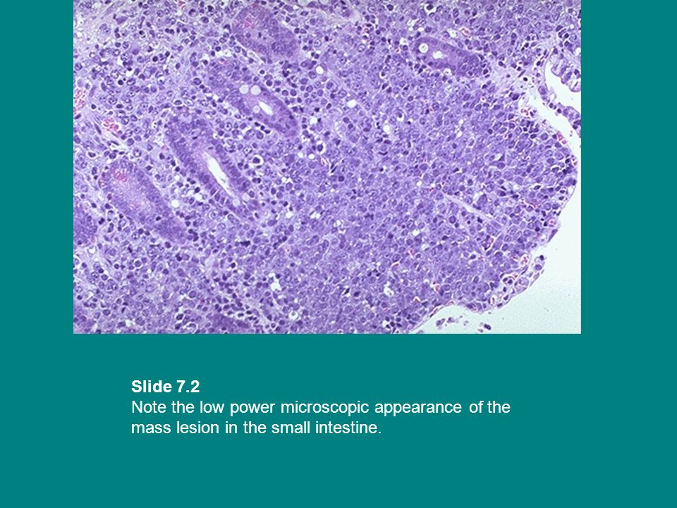 Slide 7.2 Note the low power microscopic appearance of the mass lesion in the small intestine.
