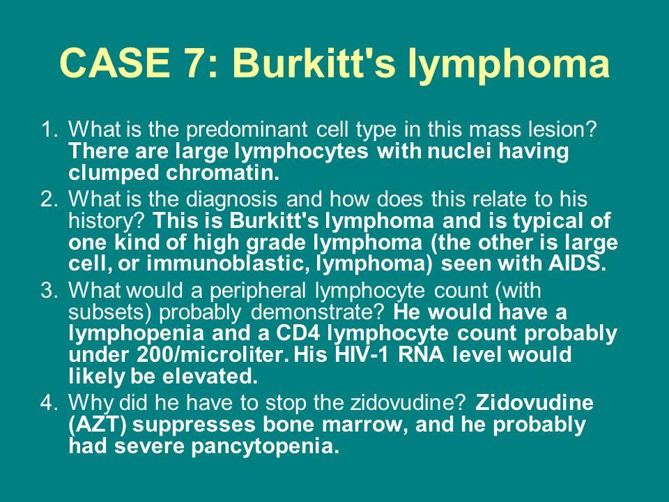 CASE 7: Burkitt s lymphoma