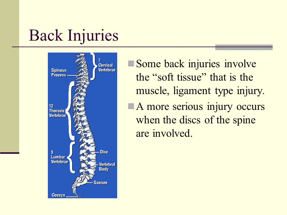 Back Injuries Some back injuries involve the soft tissue that is the muscle, ligament type injury.